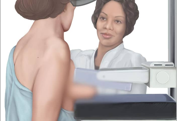 , Clearing Up the Confusion About Mammograms