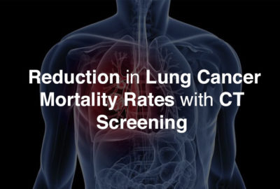 Recent Study Shows Reduction in Lung Cancer Mortality Rates with CT Screening