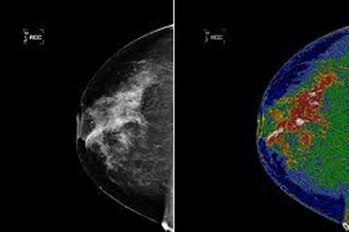 , What Does a Mammogram Show?