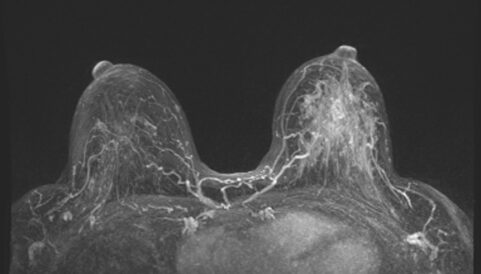 breast MRI, The Benefits of Breast MRI for High-Risk Patients