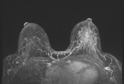 The Benefits of Breast MRI for High-Risk Patients